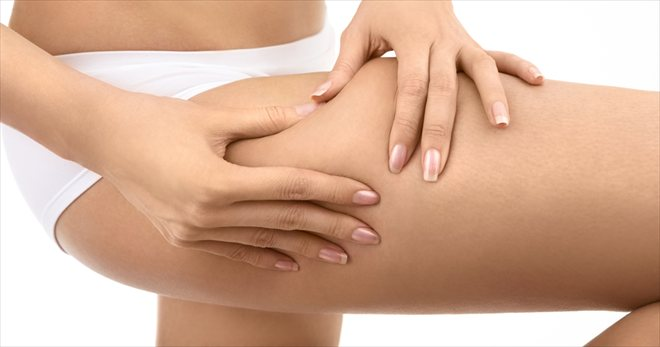 Cellulite Treatment - Waiting to Exhale Day Spa Cypress TX